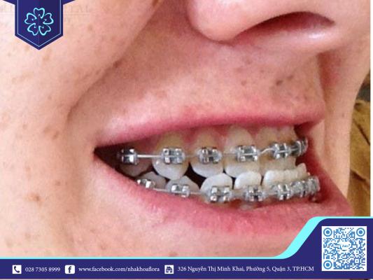 Niềng răng giúp điều trị khớp cắn ngược