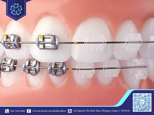 Dây cung niềng răng sử dụng trong niềng răng mắc cài