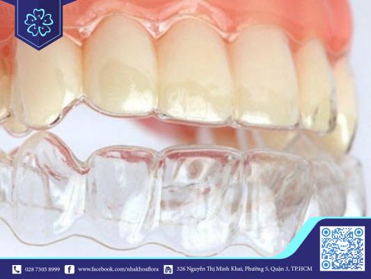 Đeo hàm duy trì sau niềng răng giúp ổn định răng (ảnh minh họa)