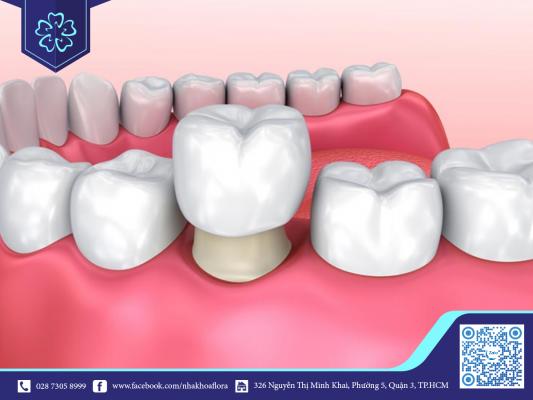 Bọc răng sứ 1 chiếc đơn lẻ có thể niềng răng