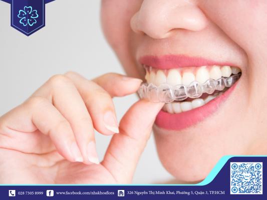 Niềng răng Invisalign là phương pháp niềng răng phù hợp để niềng răng giả