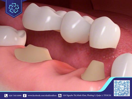 Đeo niềng cho răng giả không được áp dụng cho cầu răng sứ