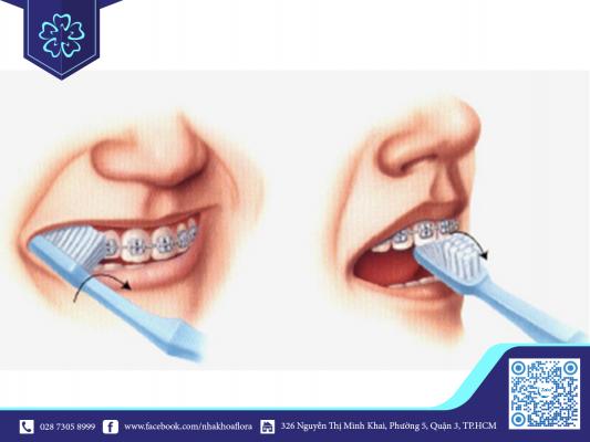 Vệ sinh răng miệng đúng cách để giữ răng miệng khỏe mạnh
