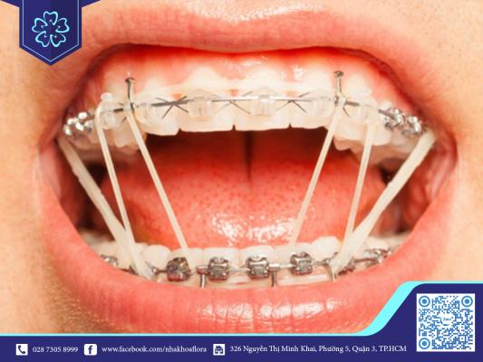Thời gian niềng răng phụ thuộc vào phương pháp niềng răng