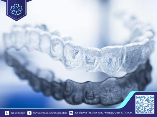 Thời gian đeo niềng răng bao lâu phụ thuộc vào chế độ chăm sóc răng miệng