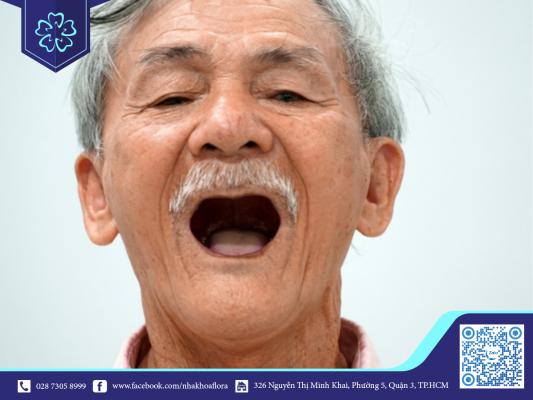 Răng dễ bị rụng khi lớn tuổi hoặc do thói quen xấu