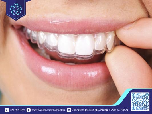 Invisalign hạn chế đổi giọng khi niềng răng