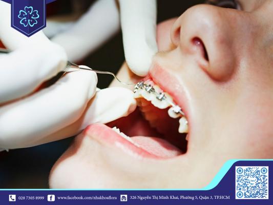 Bác sĩ tiến hành gắn mắc cài bắt đầu quá trình niềng răng