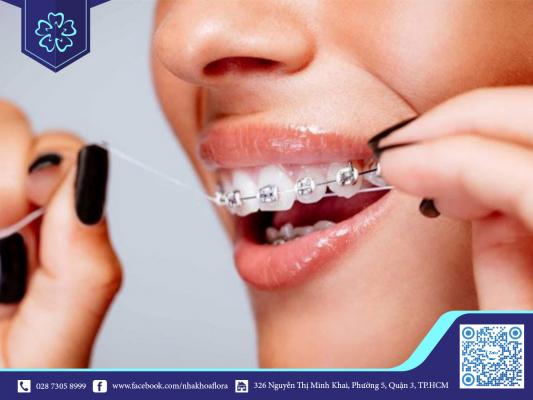 Khuyến cáo niềng răng hãy vệ sinh răng miệng đúng cách trong quá trình niềng