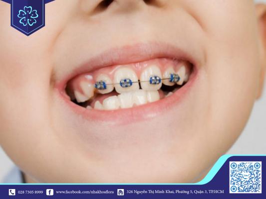 Mọc răng khi niềng làm ảnh hưởng kết quả niềng