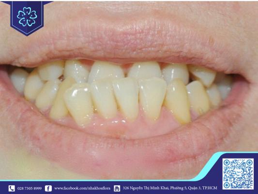 Niềng răng hàm ngược do răng