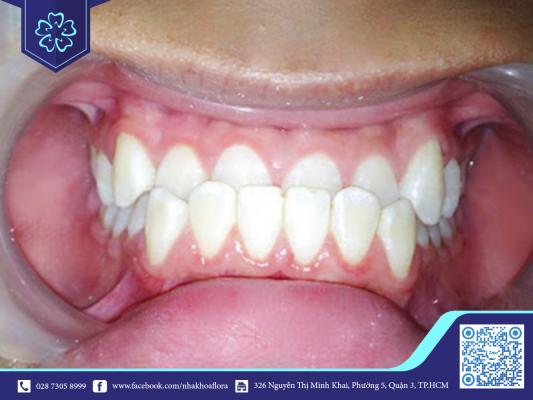Răng bị hàm ngược