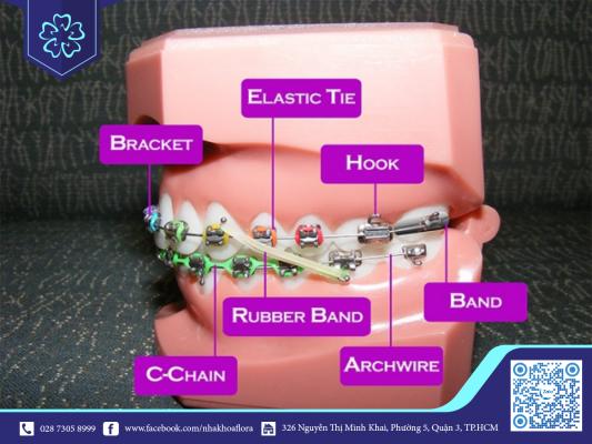 Các thuật ngữ nha khoa niềng răng cần biết