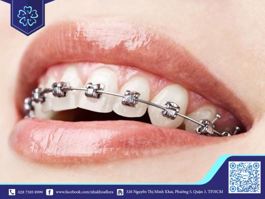 Niềng răng tiếng anh là Orthodontics hoặc Braces