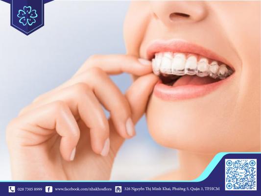 Niềng răng điều trị khớp cắn hiệu quả