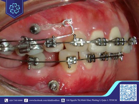 Trường hợp niềng răng tiêu xương bằng mắc cài