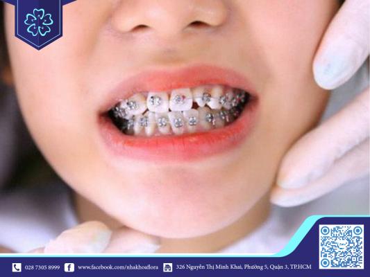 Niềng răng trẻ em điều chỉnh răng hiệu quả