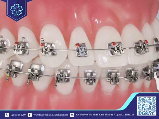 Tình trạng niềng răng gây yếu răng dễ xuất hiện ở phương pháp niềng răng mắc cài