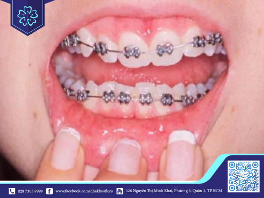 Triệu chứng niềng răng: Ngứa răng khi niềng