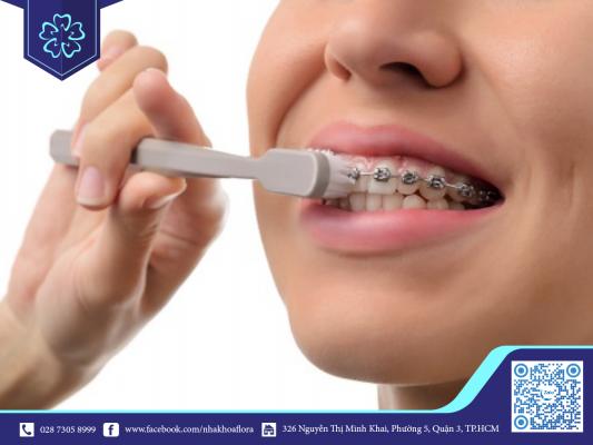 Vệ sinh răng miệng đúng cách giúp hạn chế ngứa răng khi niềng