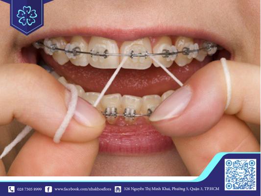 Răng dễ ngả vàng khi niềng răng