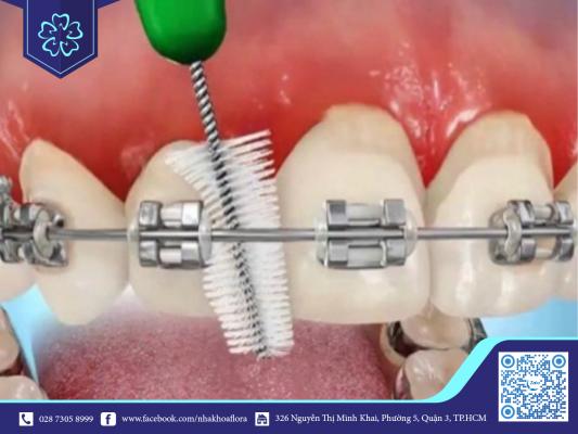 Dễ bị viêm nướu nếu niềng răng không được vệ sinh sạch