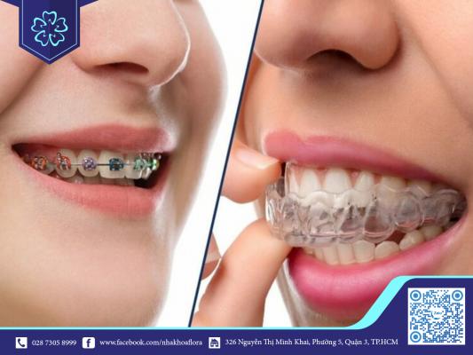 Vấn đề niềng răng dễ xuất hiện ở niềng răng mắc cài so với Invisalign
