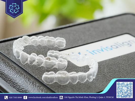 Niềng răng Invisalign được điều chỉnh phù hợp lộ trình