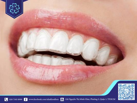 Răng Invisalign đẹp tự nhiên