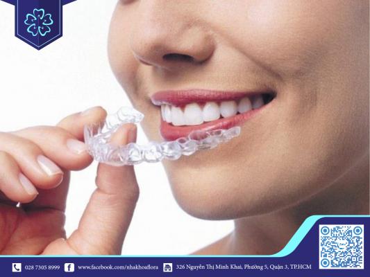 Niềng răng Invisalign - xu hướng niềng răng hiện đại